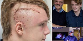Ученые создали робота, излечившего подростка от эпилепсии